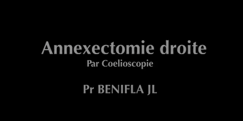 Annexectomie droite Benifla JL