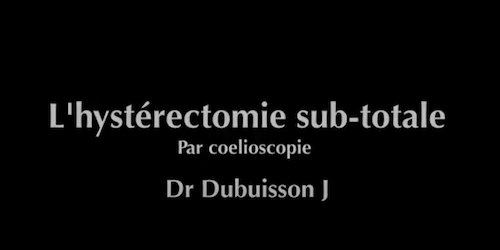 Hysterectomie sub totale Dubuisson J