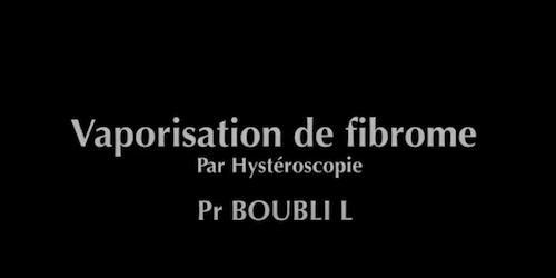 Vaporisation de fibrome Boubli L