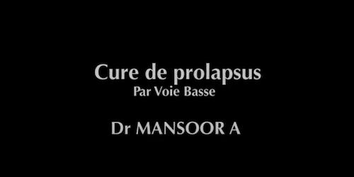 Prolapsus voie basse Mansoor A
